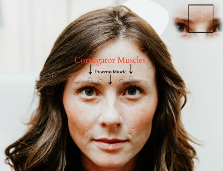 Before Dysport Face Corrugator Muscles