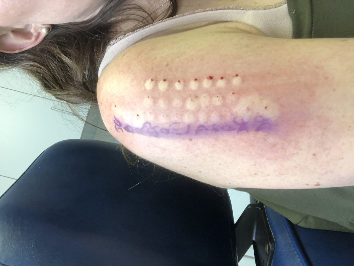 Allergy Testing Results