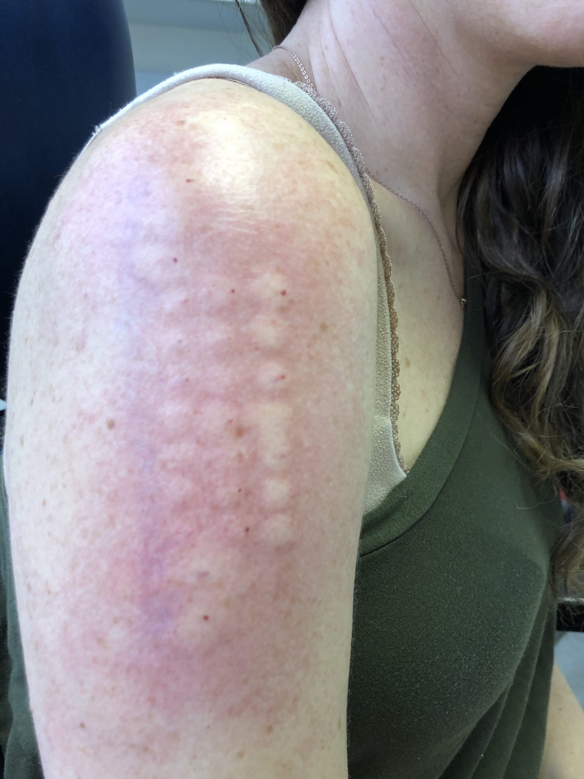 Allergy Testing Results on an Arm