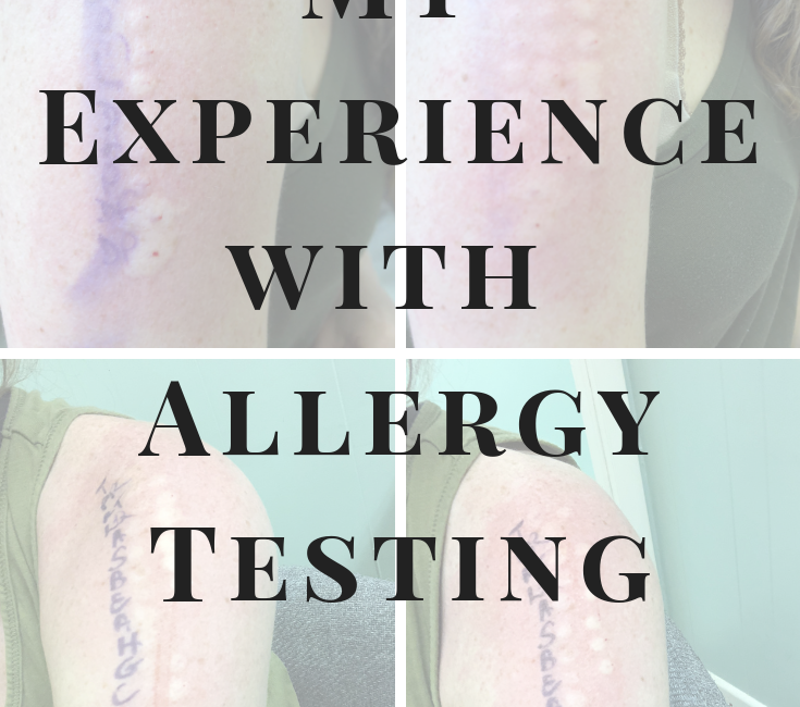 My Experience with Allergy Testing