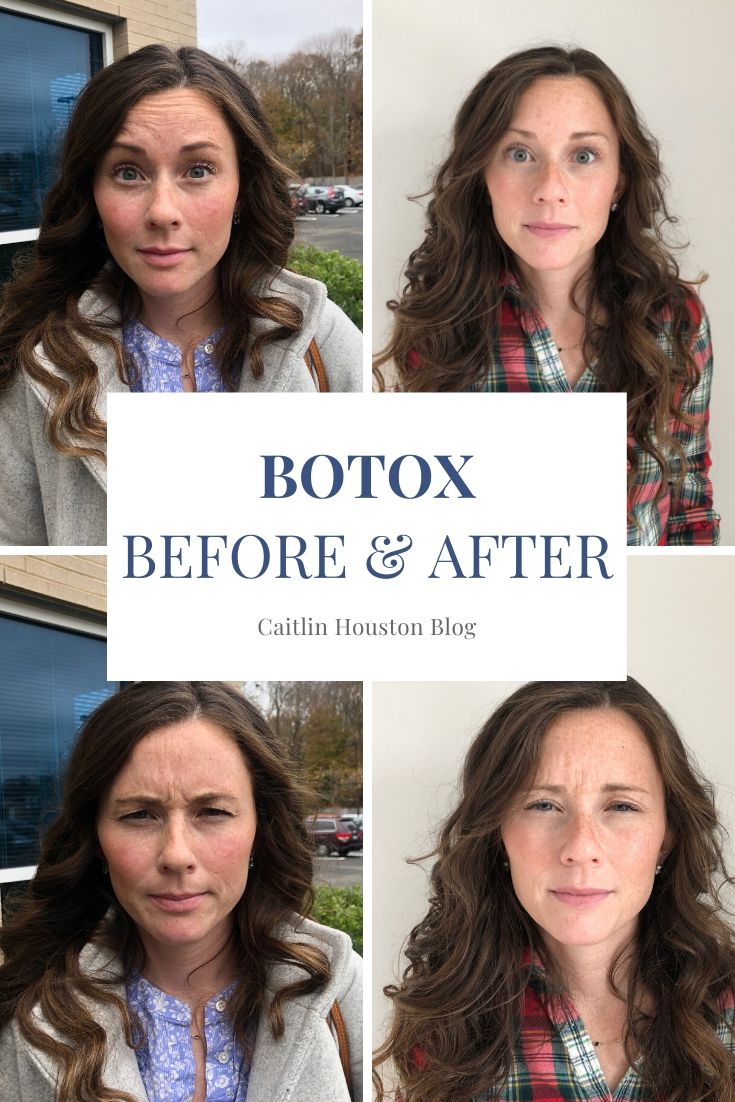 Self care is taking an active role in preserving your physical, emotional, and mental health. As a Mom, my self care is botox.