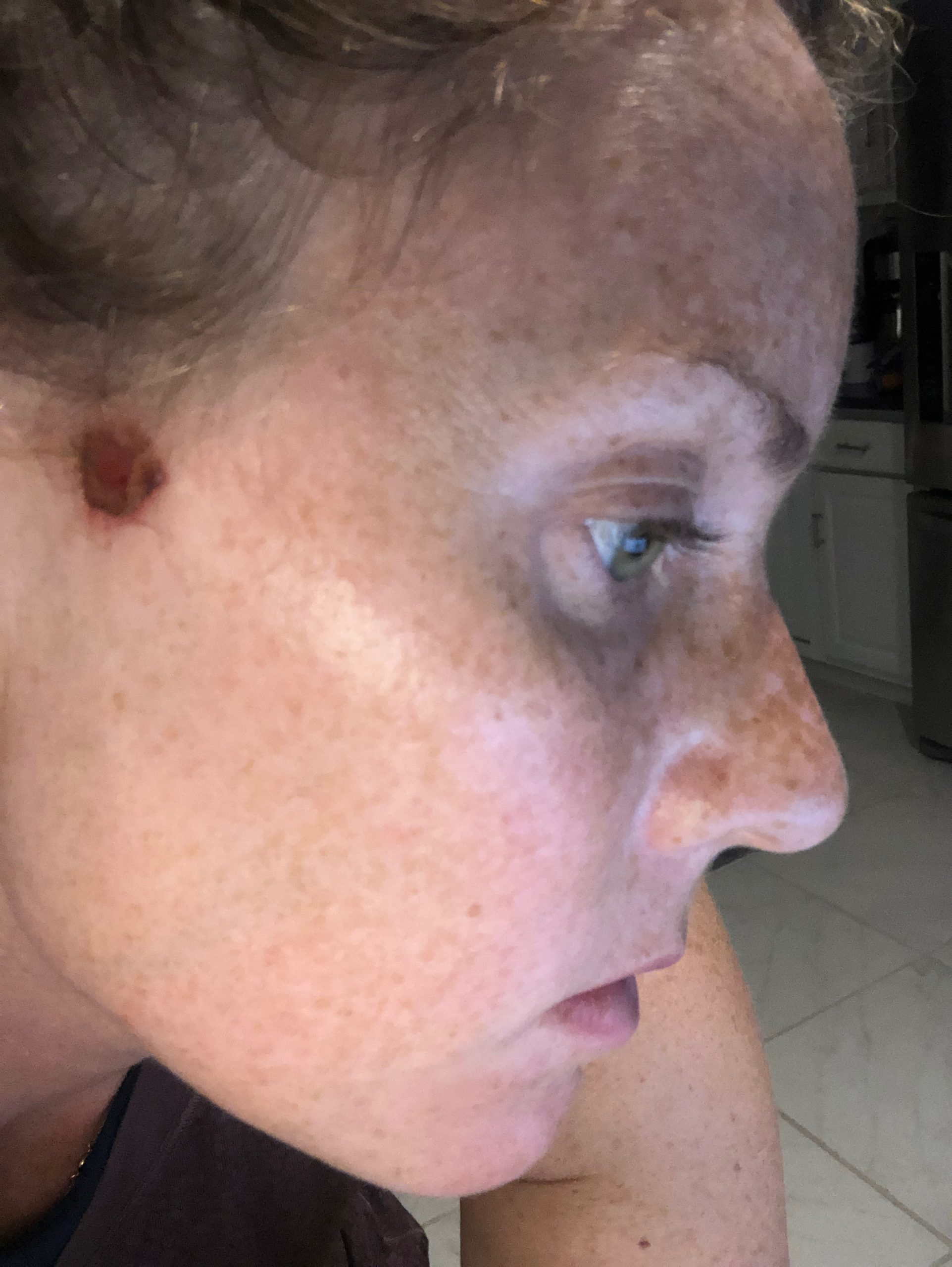 Woman with Basal Cell Carcinoma Skin Cancer on face