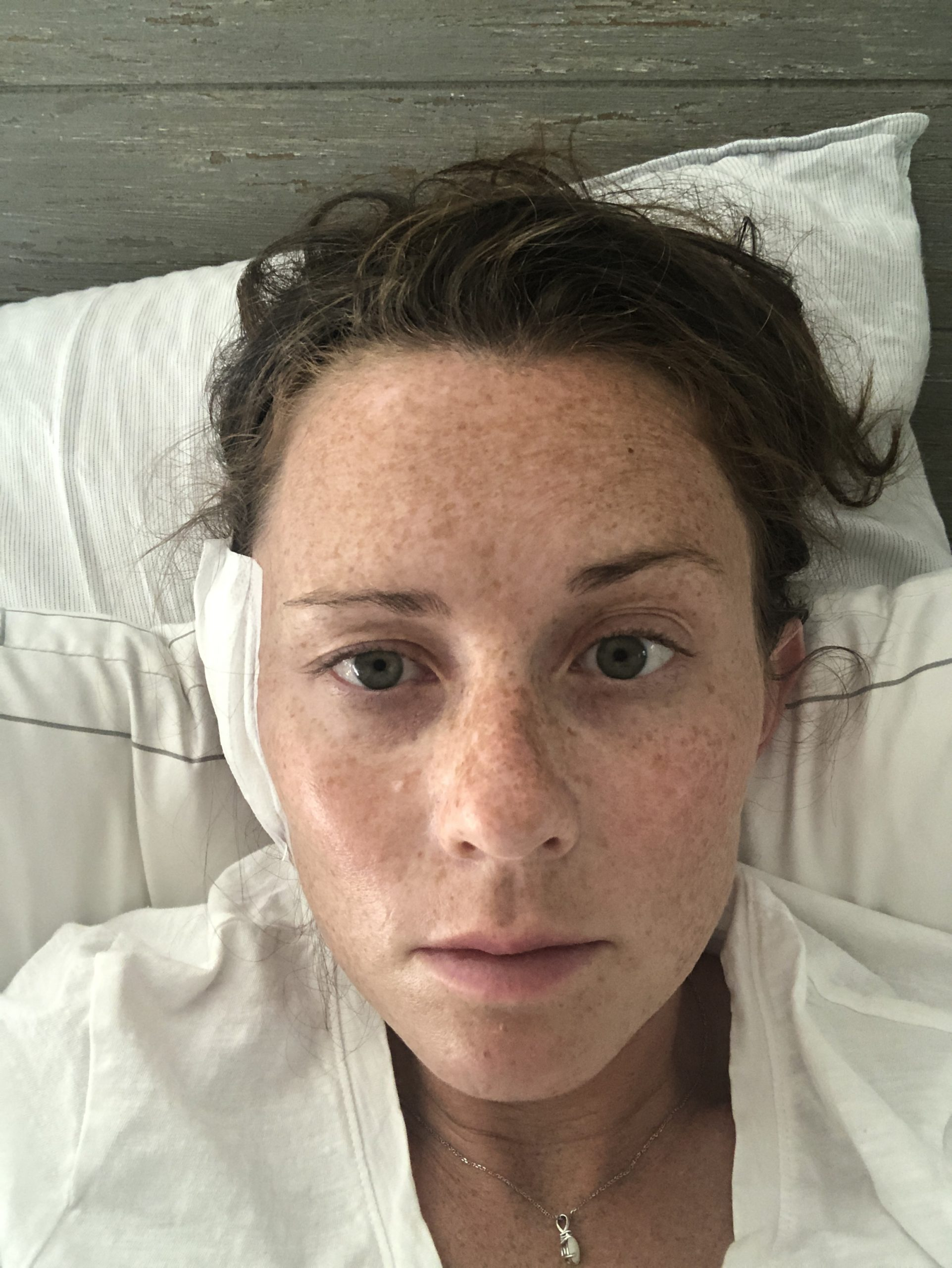 minor facial paralysis post mohs surgery