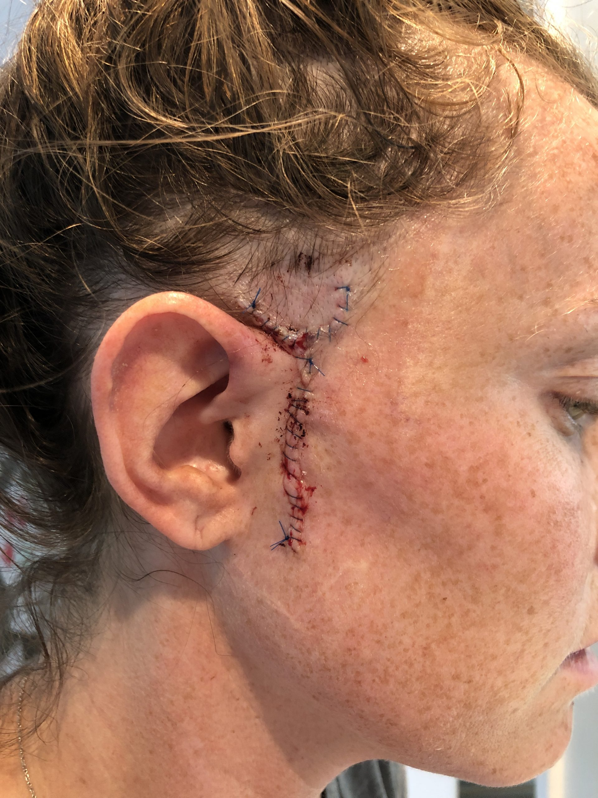 Mohs Surgery Scar with stitches
