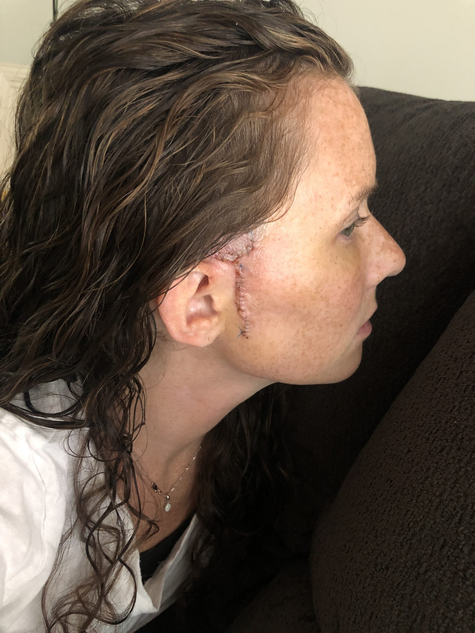 Woman post Mohs Surgery with Scar on side of Face and bruising around eye
