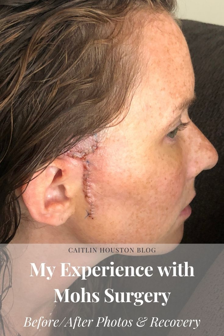 Mohs Surgery for Basal Cell Carcinoma with Before and After Surgery Photos